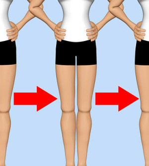 "Type the words ""thigh gap"" into Google and in return will ..."