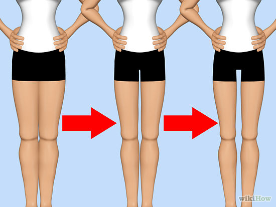 mind the gap thigh craze hurts women north texas daily. Black Bedroom Furniture Sets. Home Design Ideas